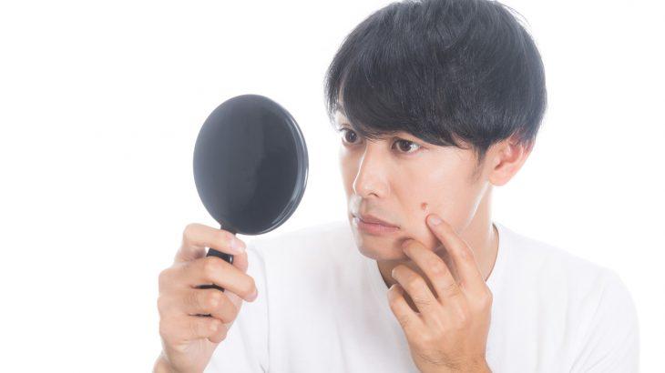 【悩み解決!20代男性向け】ニキビの基本知識と正しいスキンケア(裏話あり!)